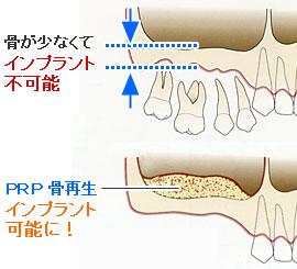 PRP(多血小板血漿)骨再生療法